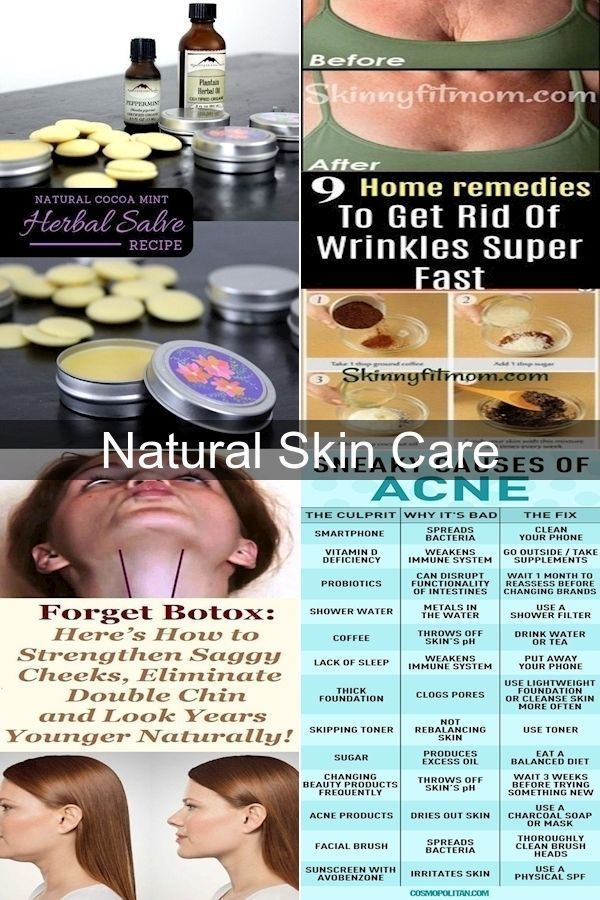 Natural Face Moisturizer Natural Skin Care Store How To Care Skin At Home Care Face H In 2020 Natural Skin Care Store Natural Skin Care Natural Skin Moisturizer