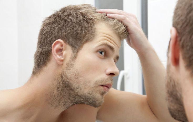 Difficile d'assumer la calvitie lorsque l'on est un homme, d'autant que peu de «remèdes» sont accessibles. Et si la solution venait de la propolis ?