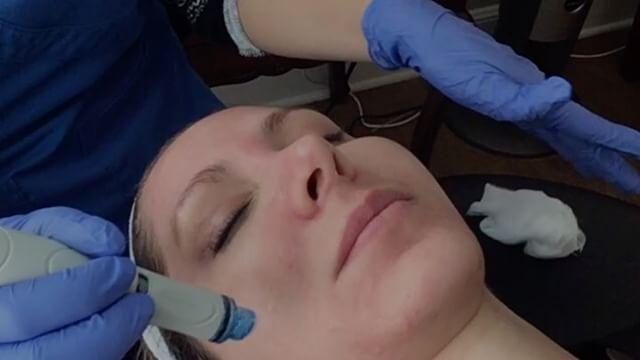 What's the best new facial? #hydrofacial helps to exfoliate the skin while infusing serums to rehydrate it. Leaving your skin with a healthy, rejuvenated glow💁🏼Great for anti-aging and acne prone patients  #youngeryou #beautifulyou #antiaging #facefirstlaserclinic #montereybay #fightacne #fightaging #montereybaylocals - posted by Face First Laser Clinic https://www.instagram.com/facefirstlaserclinic - See more of Monterey Bay at http://montereybaylocals.com