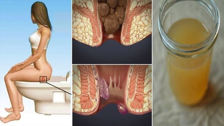 Cure Hemorrhoids At Home With Only One Ingredient || Nature Cure