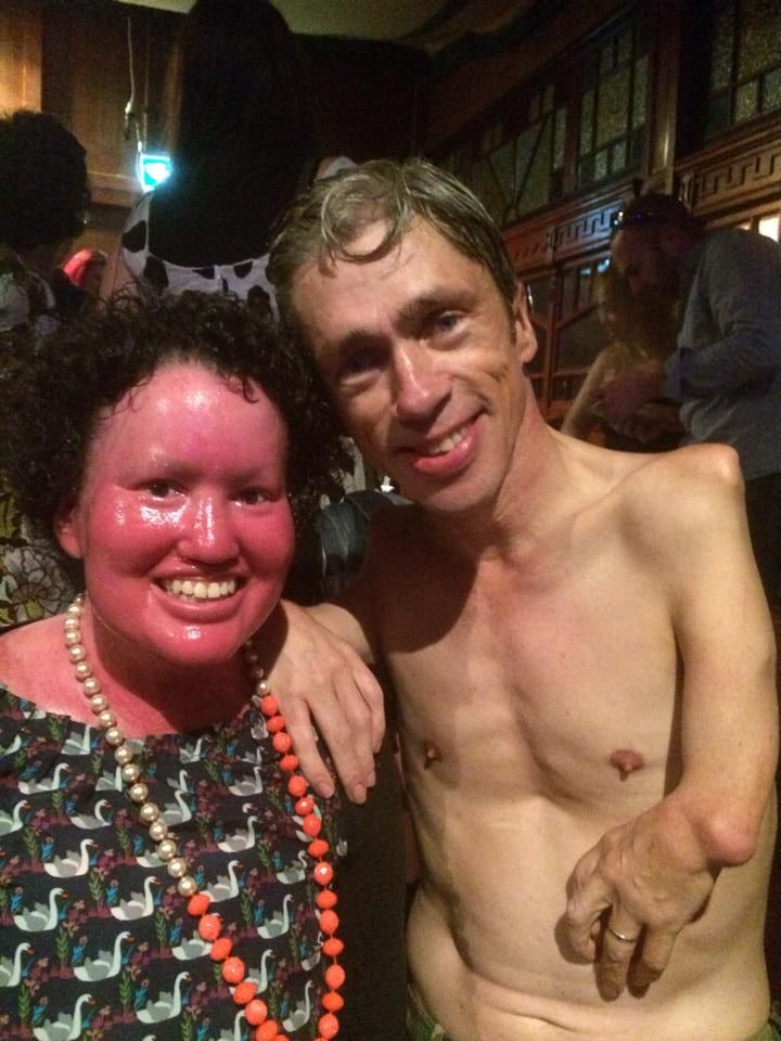The time Mat Fraser from American Horror Story slapped my arse.   http://carlyfindlay.blogspot.com/2015/03/the-time-mat-fraser-from-american.html  #MatFraser #AmericanHorrorStory #Freakshow #Disability #diversity #appearancediversity #appearanceactivism #Melbaspiegeltent