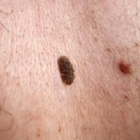 Mole removal:  Frankincense may also be applied directly to the mole one or two times per day over a period of two weeks. The mole should blacken and fall off within 2 weeks.  Continue with oil after mole is gone to prevent scarring.