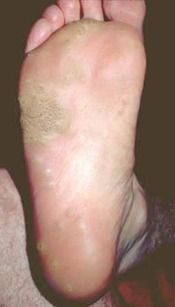 Common Warts Skin Growths from Viruses & Plantar Warts: Freezing & Homeopathic Treatments & Remedies