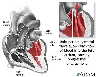 A.D.A.M. diagram of mitral valve prolapse  This is about the best I have seen.