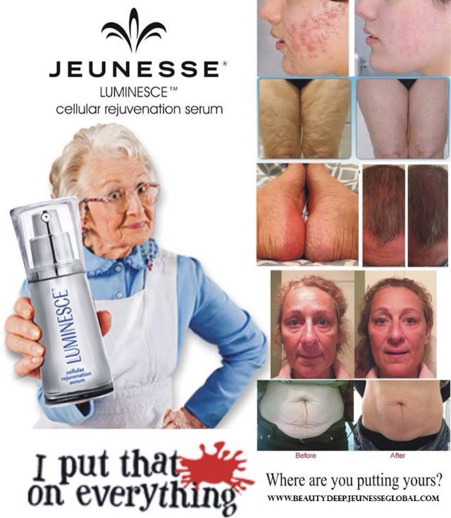 Cellular Rejuvenation Serum! Amazing results are happening! Made from adult stem cells to repair, rejuvenate and condition your skin from the inside out. Helps with acne, stretch marks, deep pores,eczema, rosecia & so much more.. www.tbeach.jeunesseglobal.com or tbeach66@yahoo.ca