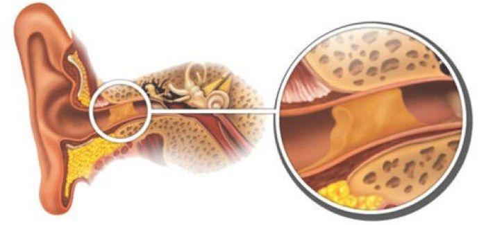 Éliminer les bouchons de cérumen de façon naturelle