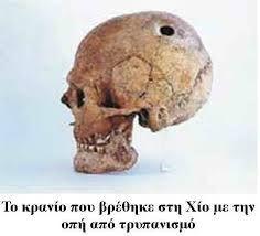 Επεμβάσεις εγκεφάλου στην Αρχαία Ελλάδα | Μαίανδρος