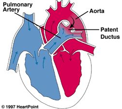 Patent Ductus Arteriosus.  When the ductus arteriosus does not close, some oxygenated blood that should be going into circulation gets shunted back into the heart.