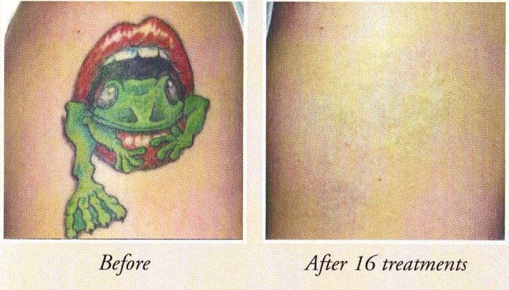 65 best images about tattoo removal before and after on for Best tattoo removal los angeles
