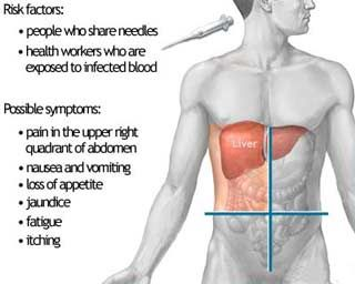 Guide for Hepatitis Causes and Prevention