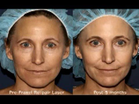 Patient feedback laser wrinkle treatment