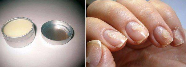 Запечатывание ногтей в домашних условиях