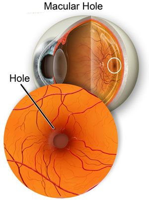 Eye Doctor Rhode Island