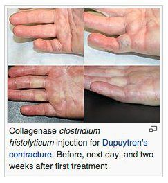 Dupuytrens contracture | Lipoma | Pinterest