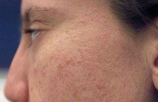 ¿Cómo maquillarme si tengo acné?