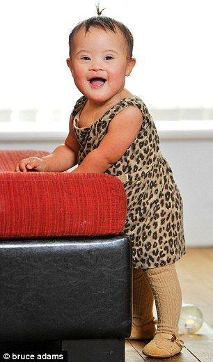 This is so awesome!! This baby has down syndrome but that does not stop her from modeling!