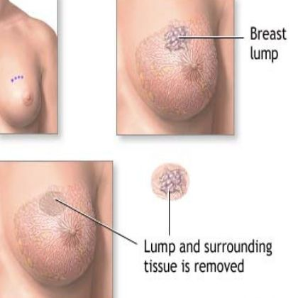 Breast Cancer: Symptoms, Treatment Prevention