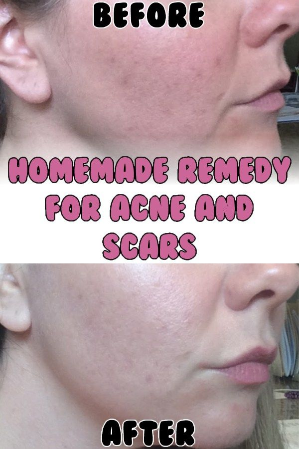 how to get rid of sebaceous glands on face