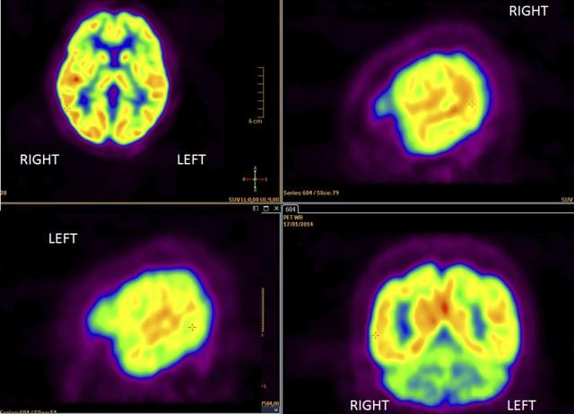What is a PET scan, how is it done, and how does it help diagnose (or rule out) the spread of cancer?