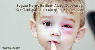 Brand new post: Segera Konsultasikan Alergi Bayi Anda Saat Terdapat Gejala Alergi Protein Susu Sapi  Jika bayi mulai mengkonsumsi susu formula sebagai makanan tambahan pendamping ASI dan Anda mencurigai adanya kondisi alergi susu sapi yang dialami oleh bayi. Oleh karena itu Anda jangan menunda untuk segera konsultasikan alergi tersebut ke dokter anak yang Anda percayai. Menemui ahli medis memang sangat disarankan bagi bayi yang mengalami alergi. Agar Anda bisa mendapatkan penjelasan detail…