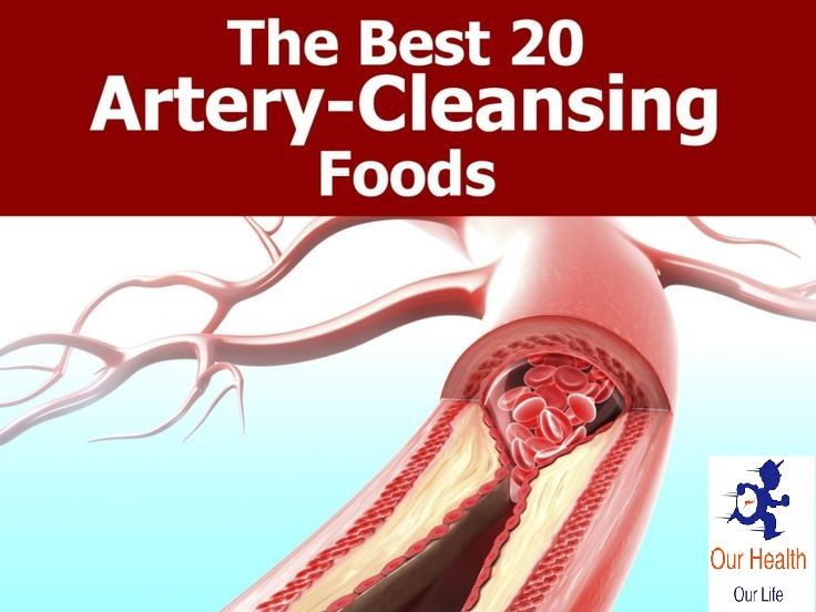 The number one killer of Americans is heart disease. Plaque buildup in the arteries is what causes this disease and it puts patients at risk for stroke and heart attack due to blocking blood flow. The typical American diet puts most people at risk for potentially developing heart disease at some point in life.