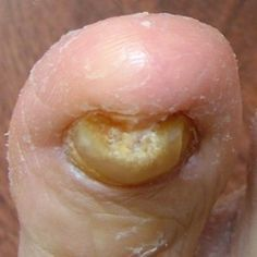 Few Effective Home Remedies For Toe Fungus