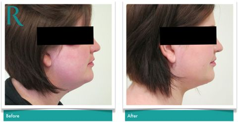VASER Lipo to the chin & neck in London, Hertfordshire & Bedfordshire: Chin Liposuction
