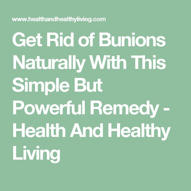 Get Rid of Bunions Naturally With This Simple But Powerful Remedy - Health And Healthy Living