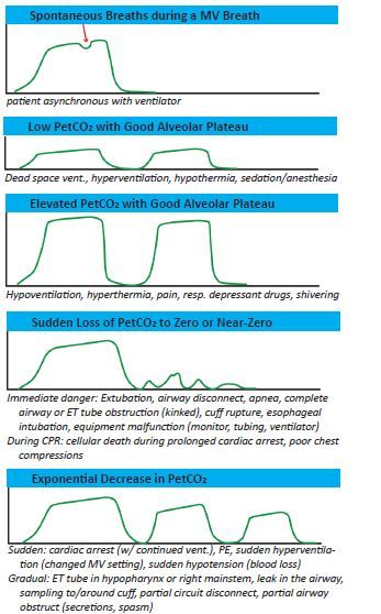 Capnography - Abnormal Waveforms