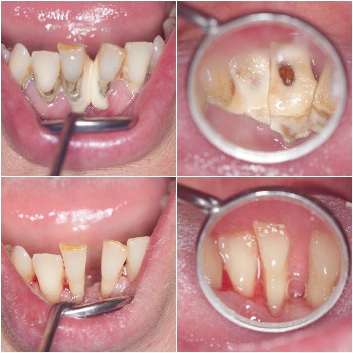 Before After Have a healthy smile! A regular dental hygiene treatmant is really important!!
