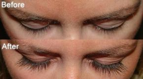 "How to Grow Eyelashes? (Fast & Naturally) The following article is about remedies to grow eyelashes. Every girl wants to look beautiful and attractive. From clothes, makeup, accessories, hair to eyelashes everything contributes to a ""beautiful you"". Long, thick eyelashes are something for which every woman die for. The  eyes ... #Eyelashes, #GrowEyelashes, #GrowEyelashesAtHome, #GrowEyelashesFast, #GrowEyelashesNaturally, #ProductsToGrowEyelashes, #ThickAndLong"