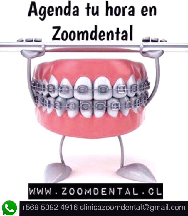 La sonrisa que siempre soñaste esta a tu alcance en ZOOMDENTAL promoción invierno brackets metálicos por $190.000 agenda tu hora +569 50924916, clinicazoomdental@gmail.com,  www.zoomdental.cl  PROVIDENCIA. #ortodoncia #bracketsmetalicos #providencia #promocion #dientes #sonrisaperfecta #diseñodesonrisa  #blanqueamiento #zoomdental #odontologia #dentistas #limpiezadental #encias