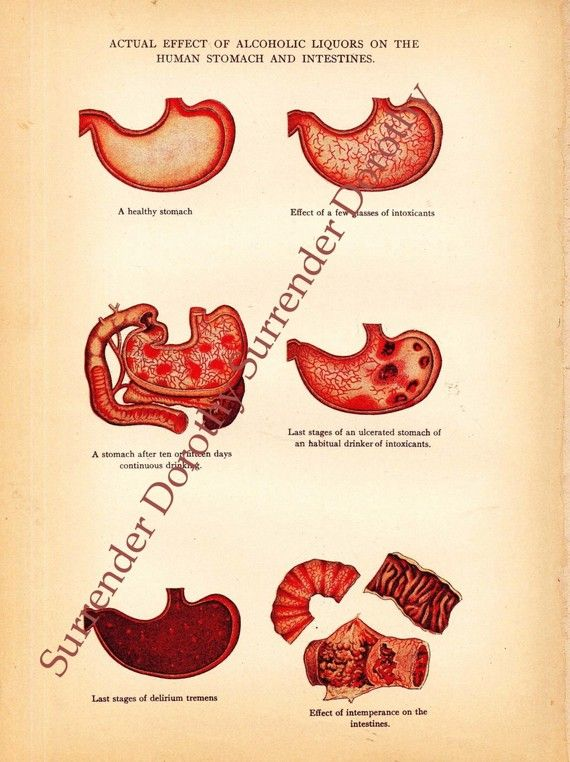 how does alcohol affect the stomach and intestines