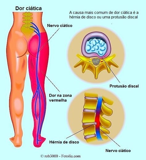 Inflamação do nervo ciático, dor ciática, hérnia, dor, perna