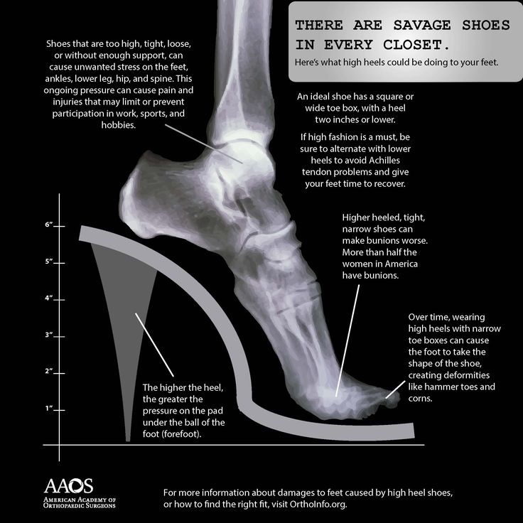 Shoes That Are Too High Can Cause Unwanted Stress On The Body http://gdonnmd.com/ #obgyn #womenshealth #her #personalcare #medical #elmhurst #corona #queensny #foresthills #regopark #woodhaven #astoria #jacksonheights #gynecology #practicewithus #pregnancy #labor #motherhood #birth #Obstetrics #anatomy #physiology #ultrasound #radiology #sonography #baby #newborn #newmoms #healthcare #gdonn