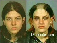 photos of meth addicts - Google Search#