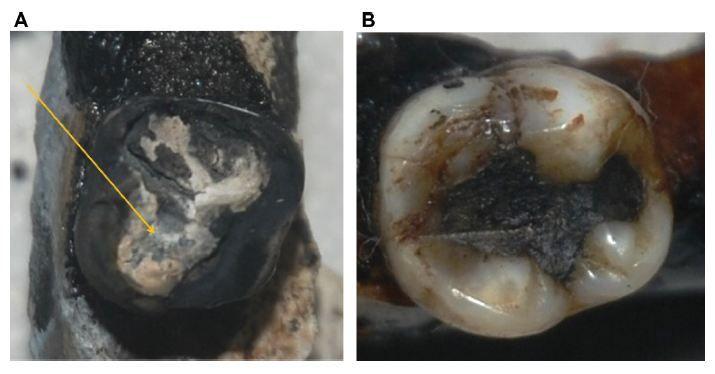 Figure 9 The teeth (A) 47 and (B) 37.