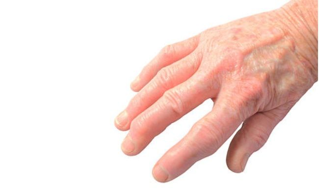 Best And Effective Ways To Cure Arthritis In Fingers