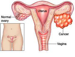 learn the basic pathology of ovarian tumor of sex cord stromal origin
