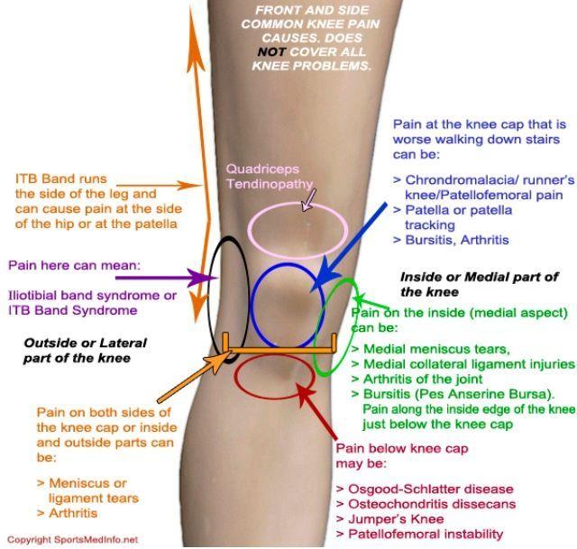 sore knees cause