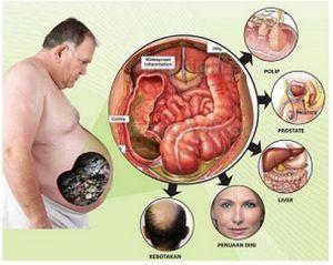 Menurunkan berat badan dengan Smart Detox | Smart Detox Synergy - Jakarta #smartdetox #smartdetoxjakarta