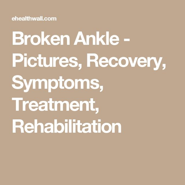 Broken Ankle - Pictures, Recovery, Symptoms, Treatment, Rehabilitation