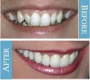 Dental Implants in Sun City West, AZ