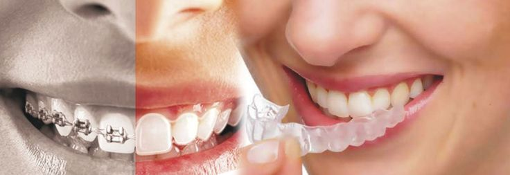 Aura Dental Avenue is one of the best Dentists clinics in Indirapuram for Dental Orthodontic treatment, root canal and teeth cleaning and polishing treatments by their expert and professional doctor with effective treatment. Book your appointment call at 9999220999 and for other queries!