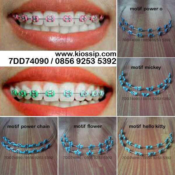 Fake Braces For Sale Related Keywords & Suggestions - Fake