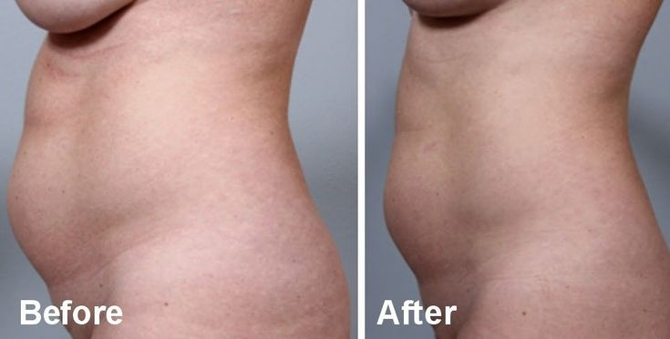Body FX Non Surgical Body Contouring in St. Louis Looking for a non surgical alternative to Liposuction? BodyFX body contouring in St. Louis is a revolutionary treatment designed to contour and tone. Click to learn more!