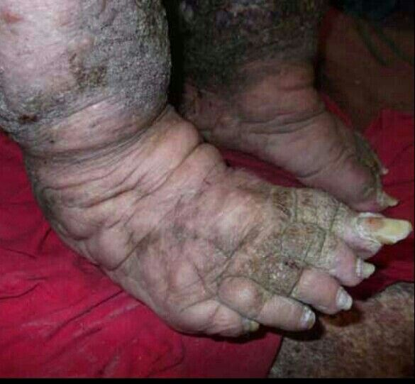 Bilderesultat for wtf gross feet