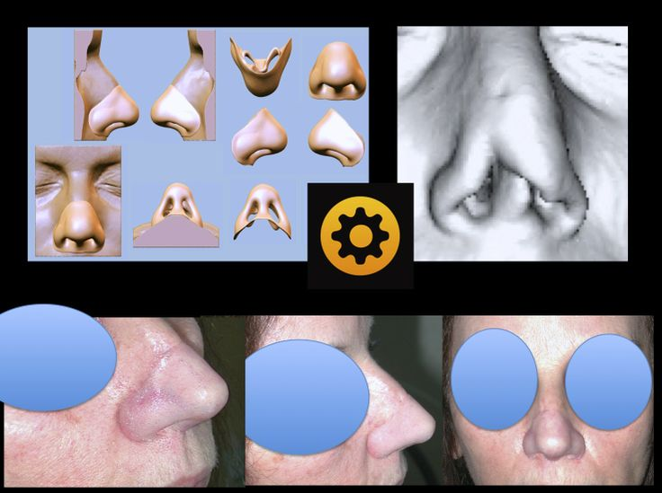 Nez  Nose