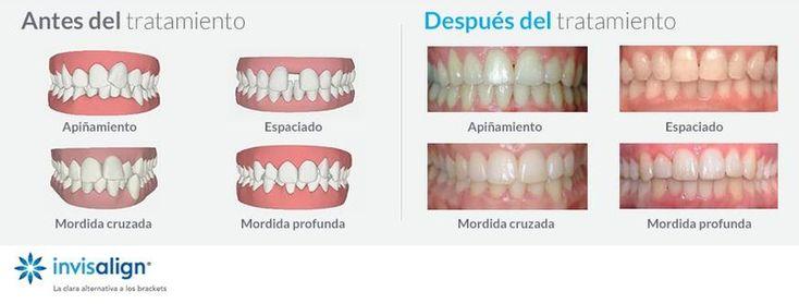 Descubre todo lo que #invisalign puede hacer por tu #sonrisa y pásate a la ortodoncia transparente!