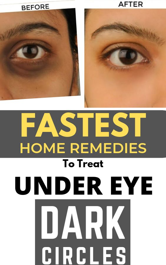 Fastest home remedies to get rid of under eye dark circles ...